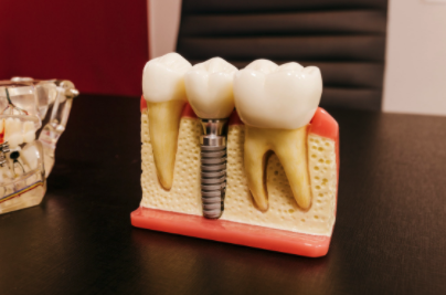 tooth-implant-model