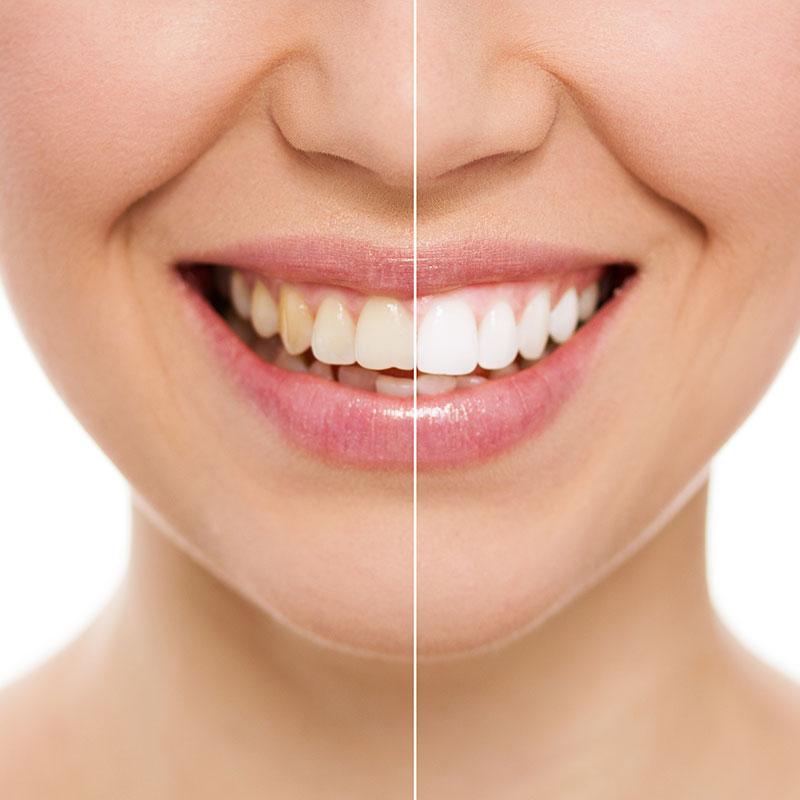 teeth whitening Sydney
