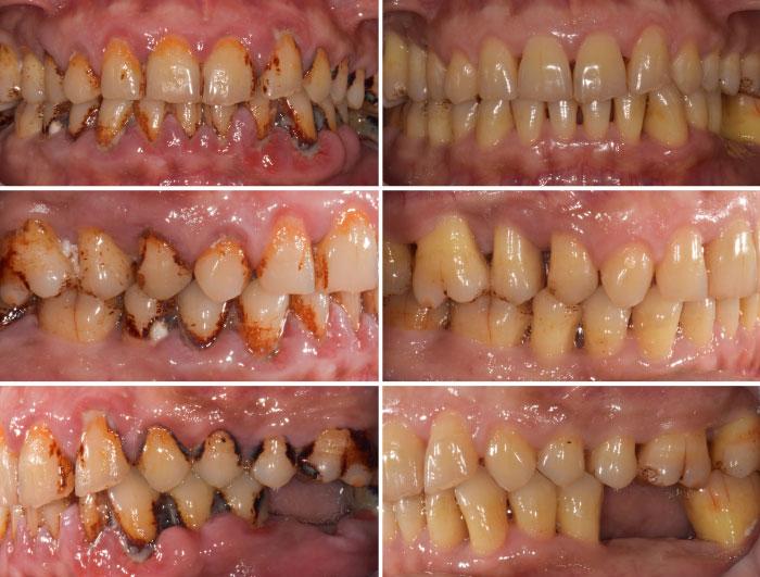 case-study-1-Generalised-Moderate-Advanced-Chronic-Periodontitis