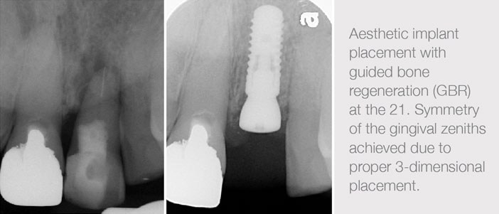 Implant-Surgery-in-the-Aesthetic-Zone-2