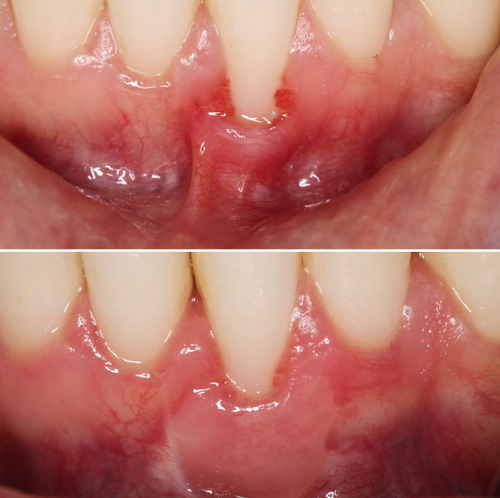 case-study-5-gival-Recession-of-Lower-Incisor