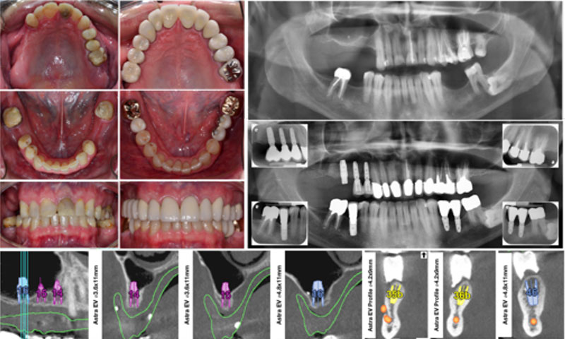 Tooth- and Implant- Supported Full Mouth Rehabilitation