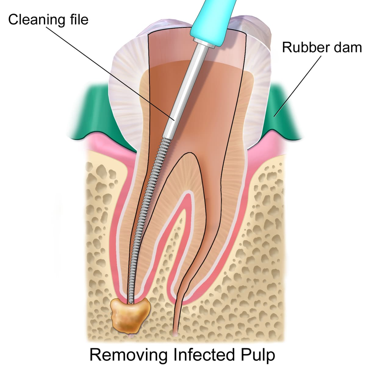 the root canal treatment process